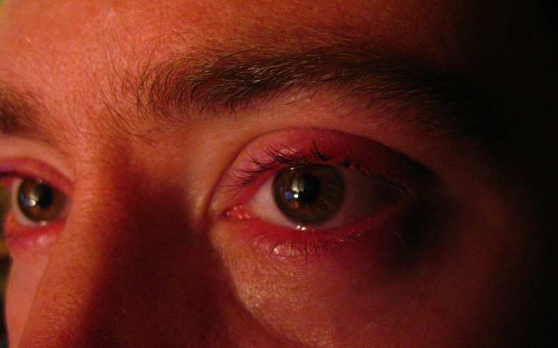 acupunctuur bij emotionele problemen